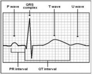 نمودار ECG
